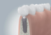 billig tandimplantater