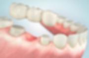 billige tandkrone og broer
