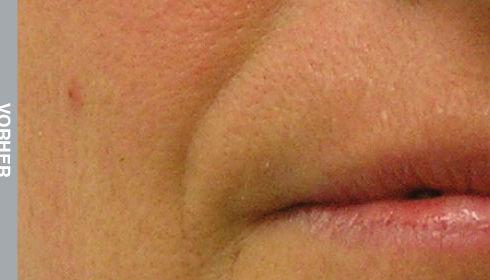Resultate-Nasolabial-Falte-Vorher.jpg