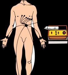 ElectoCardioGramme