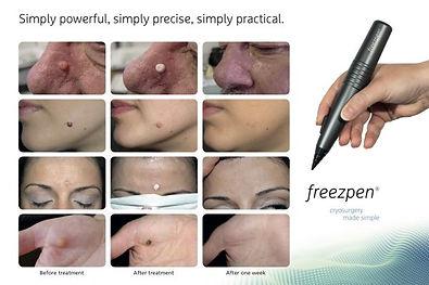 Freezpen-för-efter-600x400.jpg