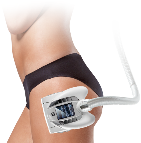 endermologie_corps_destocker-1