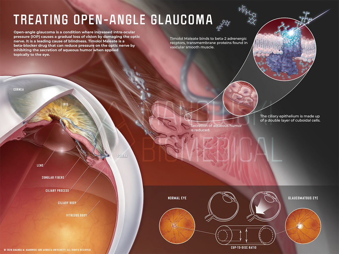 Treating Open-Angle Glaucoma