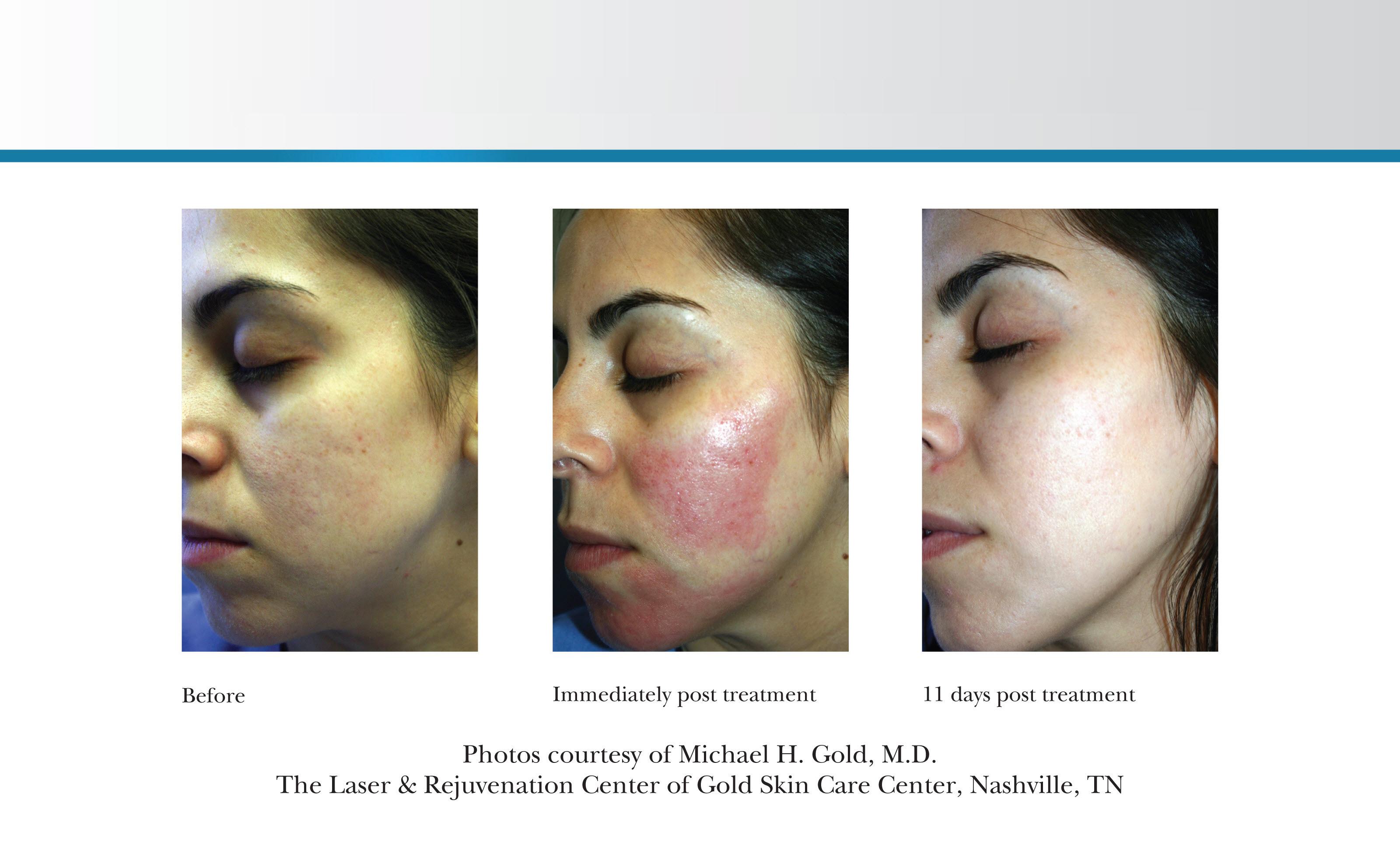 Best Laser Scar Treatment