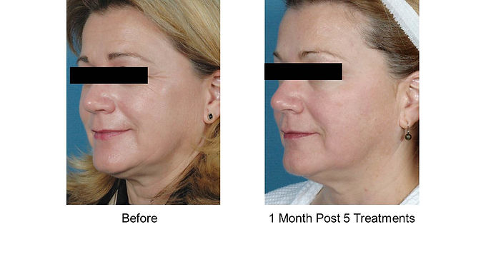 Laser RF Skin Tightening