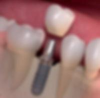 dis-implantı.jpg