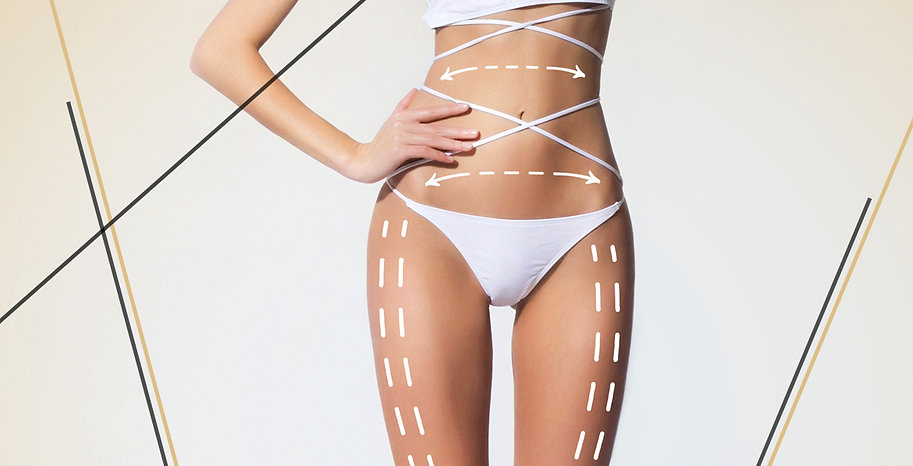 yag-alma-ameliyati-liposuction-lipoliz.j
