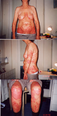 Female patient with Psoriasis - Before the herbal treatment on Oct 1998
