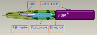 FSN – A Magical Acupuncture for Pain Release