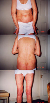 Female patient with Psoriasis - During the the herbal treatment in Dec 1998