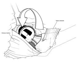 Fig 16: Prosthetic Insertion