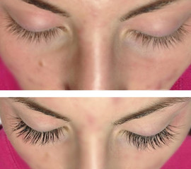 Classic Eyelashes - Before & After