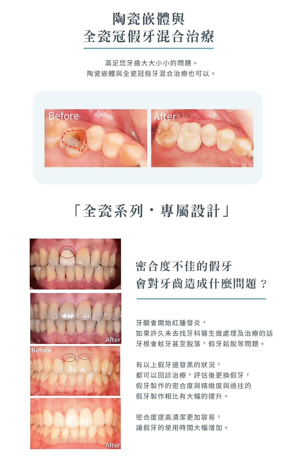 5-5_美學療程_全瓷系列b.png