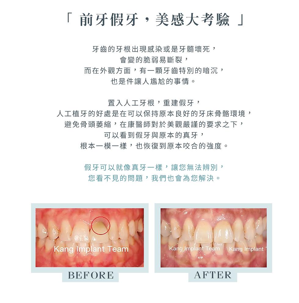 4-2_3D植牙_前牙b.png