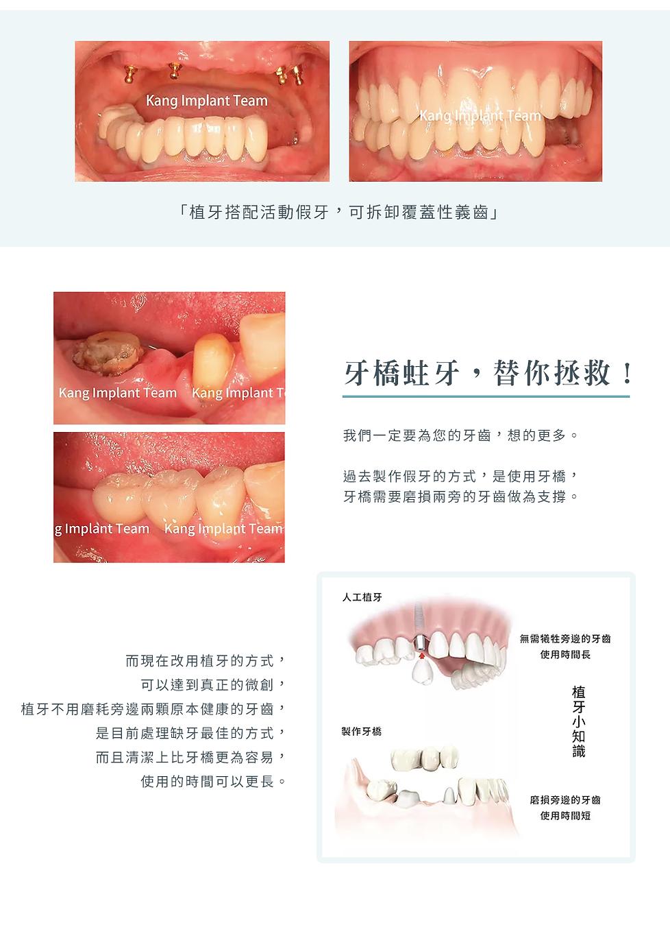 4-3_3D植牙_後牙c.png