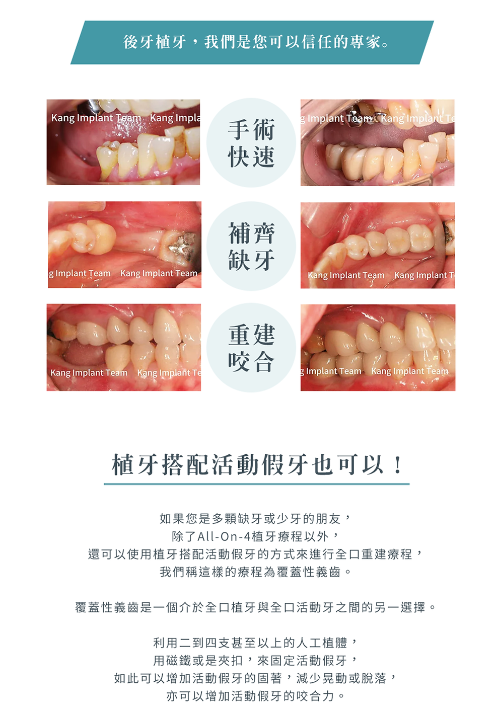 4-3_3D植牙_後牙b.png