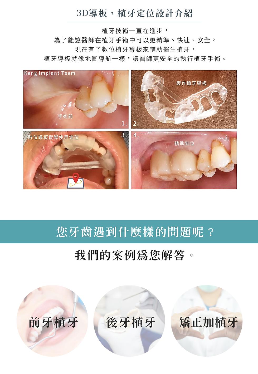 4-1_3D植牙e.png