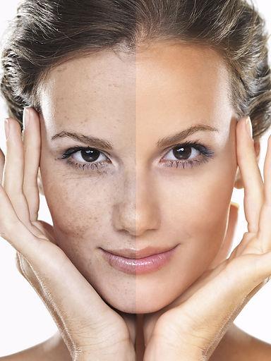 reflet-beaute-soin-visage-peeling médico-esthétique