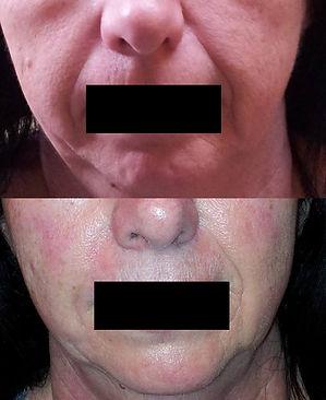 taches brunes, rougeurs, rosacée, rajeunissement de peau, rides, soins anti-âge, erythrose, chloasma, masque de grossesse, taches pigmentaire