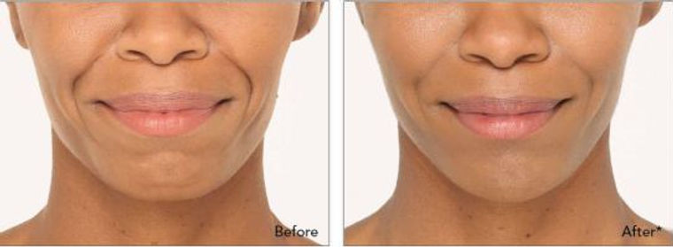 Dermal Filler- Sima Clinic