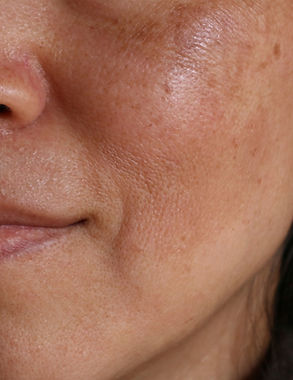 Before%20and%20after%20facial%20treatmen
