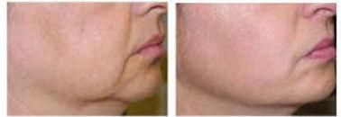 Skin Tightening_Sima Clinic