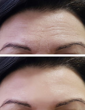 Sima Clinic_Botox_Before_After