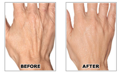 Hand Rejuvenation- Sima Clinic