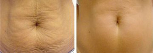 Skin Tightening_Sima Clinic_3.jpg