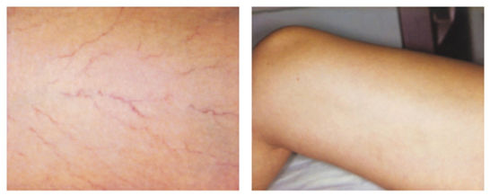 Sclerotherapy_Sima Clinic.jpg