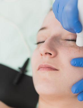 Sima Clinic- Plexr Treatment