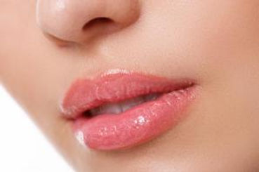 Lip Augmentation- Sima Clinic