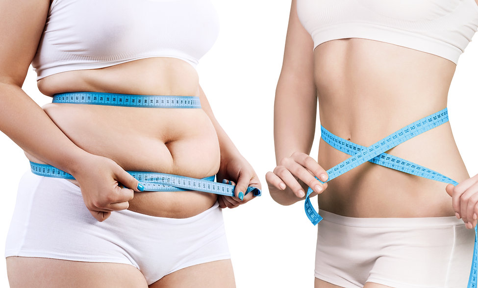 Woman's body before and after weight los