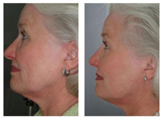 Skin Tightening- Sima Clinic