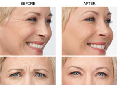 Botox Injections-Sima Clinic