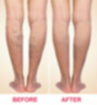 Treatment of spider veins before and after.