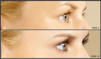 Latisse Eye Lashes | Sima Clinic