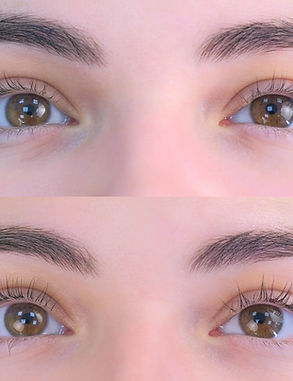 Sima Clinic-Eyelash Lift Treatment