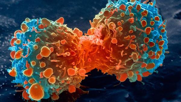 celulas cancerigenas
