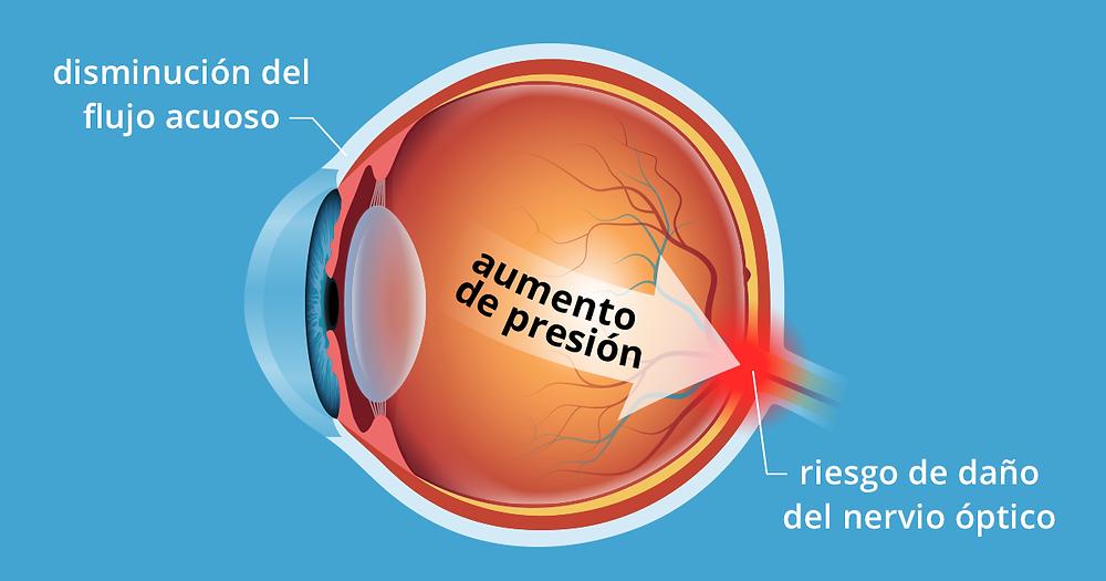 presion alta en el ojo