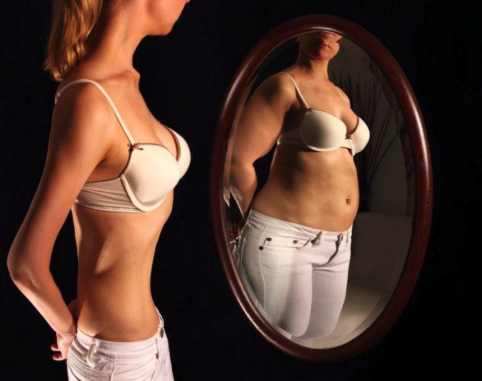 anorexia cbdmex.com
