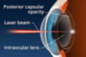 cataract2.26.png