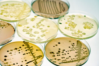 bigstock-Mixed-of-bacteria-colonies-and-