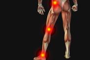 Sciatica-Pain-Relief-compressor.jpg