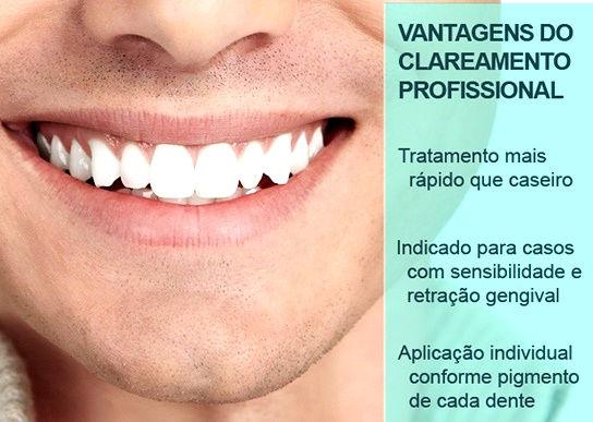 Clareamento Dentário/ Implandent