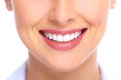 dentes-brancos