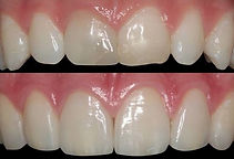 https://www.implandent.odo.br/dentisticarestauradora