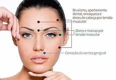 https://www.implandent.odo.br/botox