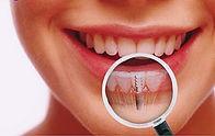 http://www.implandent.odo.br/implantesdentarios