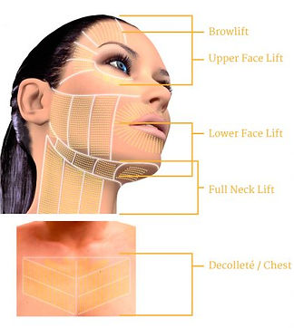 Ultherapy-Treatment-Areas-Map-420x469.jp